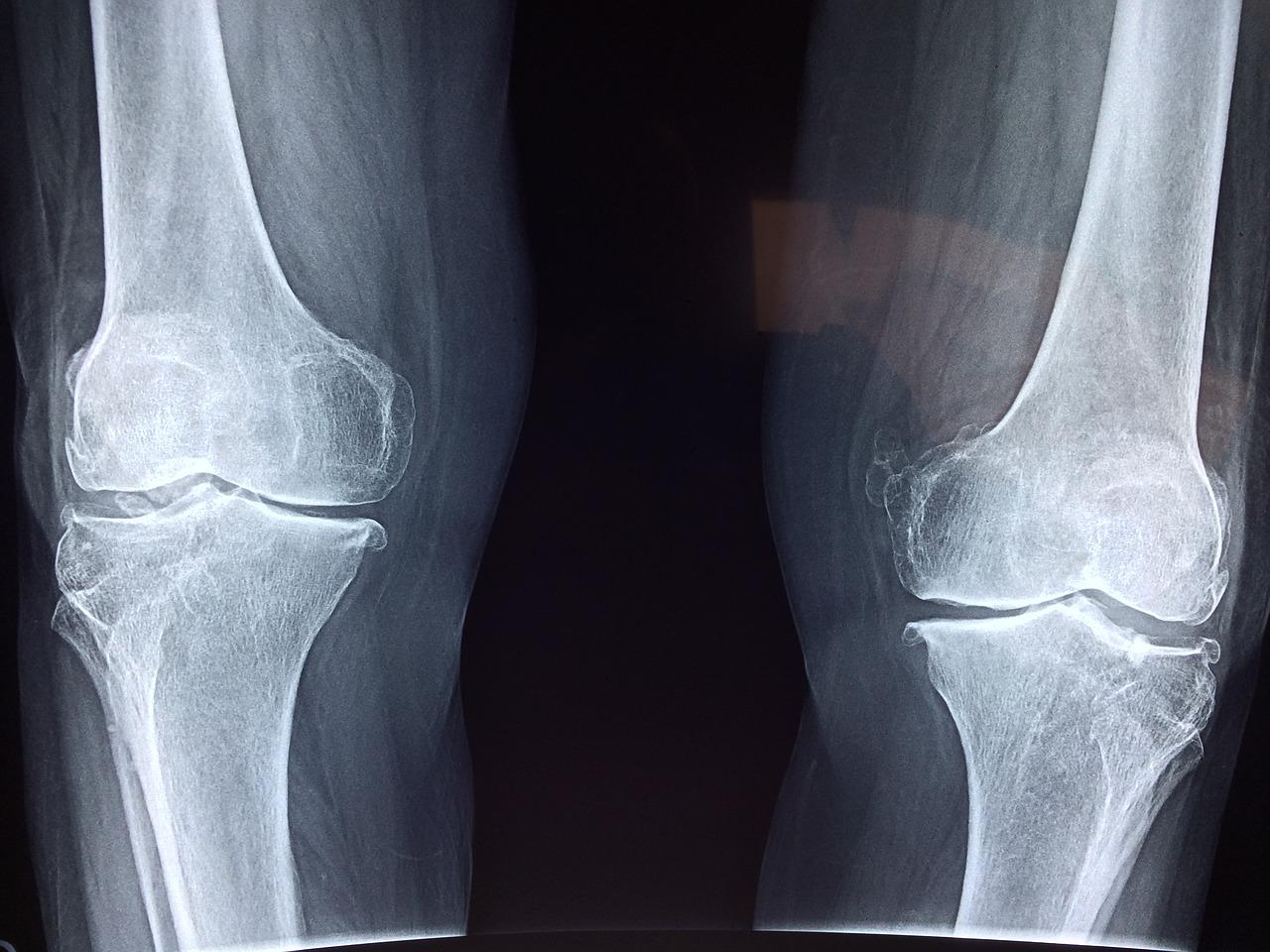 La paire de chaussettes rayons X